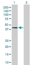 H00011344-D01P - Twinfilin-2 (TWF2)