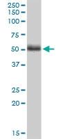 H00011344-M01 - Twinfilin-2 (TWF2)