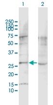 H00022859-D01P - Latrophilin-1 / AGRL1