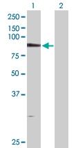 H00023042-D01P - PDXDC1