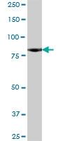 H00023154-B01P - Neurochondrin