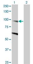 H00023268-M03 - Dynamin-binding protein