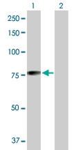 H00023295-D01P - MGRN1 / RNF156