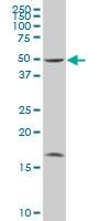 H00023438-A01 - Histidyl-tRNA synthetase 2 / HARS2