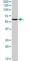 H00023481-B02 - Pescadillo homolog (PES1)