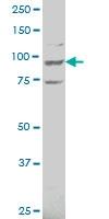 H00023545-A01 - ATP6V0A2