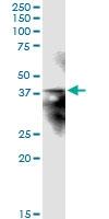 H00023673-D01 - Syntaxin 12 / STX12