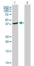 H00025797-B01P - Glutamyl cyclase / QPCT