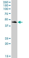 H00025797-D01 - Glutamyl cyclase / QPCT