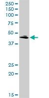 H00025797-D01P - Glutamyl cyclase / QPCT