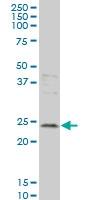 H00025801-M01 - Grancalcin