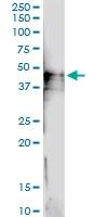 H00025945-D01 - CD113 / Nectin 3