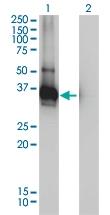 H00026119-M01 - LDLRAP1