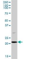 H00026258-B01P - Pallidin (PLDN)