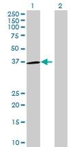 H00026341-B01 - Olfactory receptor 5H1
