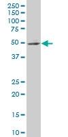 H00026548-A01 - ITGB1BP2 / Melusin