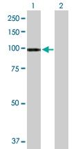 H00027032-B01P - ATP2C1