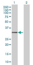 H00027120-B01 - Dickkopf-like protein 1