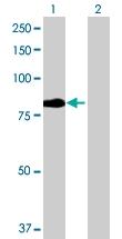 H00027242-B02 - TNFRSF21 / Death receptor 6 (DR6)