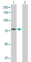 H00027242-B02P - TNFRSF21 / Death receptor 6 (DR6)