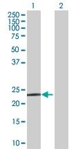 H00027306-B01 - PGD synthetase / PGDS
