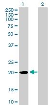 H00028966-B01P - Sorting nexin-24 (SNX24)