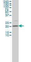 H00029114-M01 - Transgelin-3 (TAGLN3)