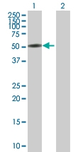 H00029119-B01P - Catenin alpha-3 / CTNNA3