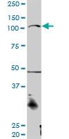 H00029119-D01P - Catenin alpha-3 / CTNNA3