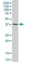 H00029765-B01 - Tropomodulin-4 (TMOD4)