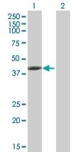 H00029766-B01P - Tropomodulin-3 (TMOD3)