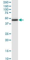 H00029766-M10 - Tropomodulin-3 (TMOD3)