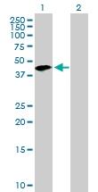 H00029767-B01P - Tropomodulin-2 (TMOD2)