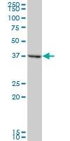 H00029767-B02P - Tropomodulin-2 (TMOD2)