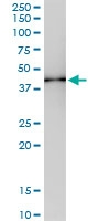 H00029767-D01 - Tropomodulin-2 (TMOD2)