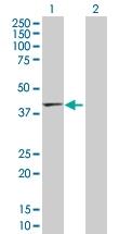 H00029767-D01P - Tropomodulin-2 (TMOD2)