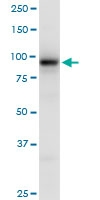 H00029904-B01P - EEF-2 kinase