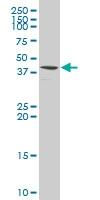 H00029907-A01 - Sorting nexin-15 (SNX15)
