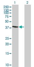 H00029907-B02 - Sorting nexin-15 (SNX15)