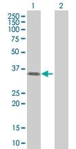 H00029916-B01 - Sorting nexin-11 (SNX11)