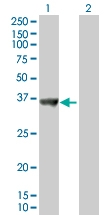 H00029916-B01P - Sorting nexin-11 (SNX11)