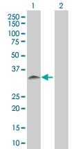 H00029916-B02 - Sorting nexin-11 (SNX11)