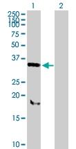 H00029916-B02P - Sorting nexin-11 (SNX11)