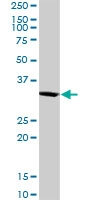 H00029916-D01 - Sorting nexin-11 (SNX11)