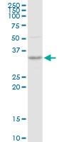 H00029916-D01P - Sorting nexin-11 (SNX11)