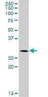H00029934-B01 - Sorting nexin-12 (SNX12)