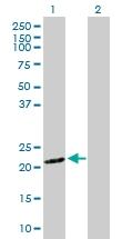 H00029934-D01P - Sorting nexin-12 (SNX12)