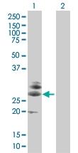 H00029965-B01 - LITAF-like protein