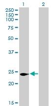 H00029965-B01P - LITAF-like protein