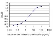 H00029978-M03 - Ubiquilin-2 (UBQLN2)